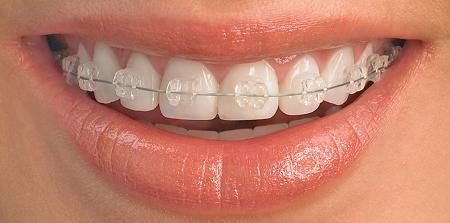 Ortodoncia transparente de zafiro