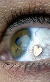 Implante extraocular