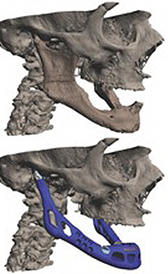 Implante mandibular