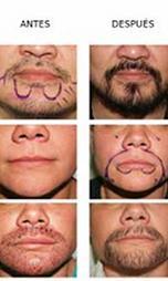 Implante de barba, bigote y cejas