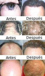 Reducción del cuero cabelludo